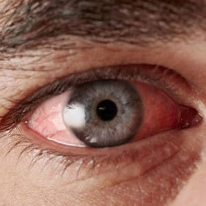 Home Remedies For Getting Rid Of Pink Eye